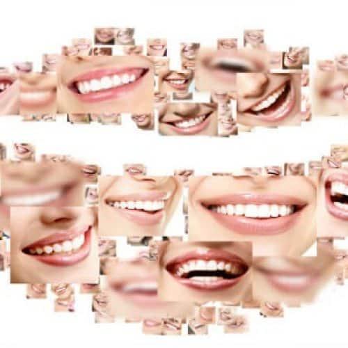 Estética Dental y Blanqueamientos en caceres